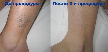 Для полного избавления от татуировки требуется от шести до восьми сеансов лечения, или большее число сеансов. Их количество зависит от глубины залегания красителя и цвета татуировки. Общий курс лечения занимает от шести до восьми недель. РЕЗУЛЬТАТЫ УДАЛЕНИЯ ТАТУИРОВОК НА АППАРАТЕ HARMONY XL: